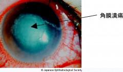 「【角膜潰瘍】21歳の女性。SCLの装用によって角膜炎を起こし、何度も眼科医にSCLの中止を勧告されましたが、無視し角膜潰瘍を発症しました。矯正視力は0.04。 (慶應大学医学部眼科 宇津見義一講師提供)」  出典 日本眼科学会 目の病気