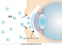"""コンタクトレンズ装用で目は""""酸素不足"""" コンタクトレンズ(CL)により角膜の表面が覆われると、涙液中の酸素が不足し、角膜は酸素不足に陥ります。  出典 日本眼科学会  目の病気"""