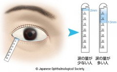 シルマー試験(出典 日本眼科学会 目の病気)