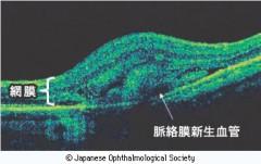 光干渉断層計検査(OCT) 加齢黄斑変性の場合。(滋賀医科大学眼科 大路正人教授提供) 出典 日本眼科学会 目の病気